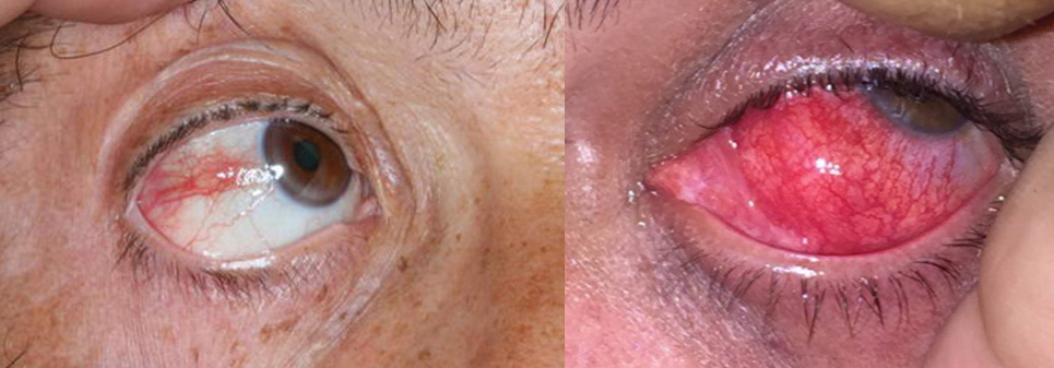 Φλεγμονές οφθαλμού και περιοφθαλμικής περιοχής 1