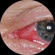 Φλεγμονές οφθαλμού και περιοφθαλμικής περιοχής