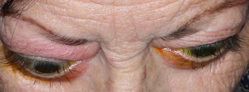 Δυσθυρεοειδική οφθαλμοπάθεια (νόσος Graves') 1