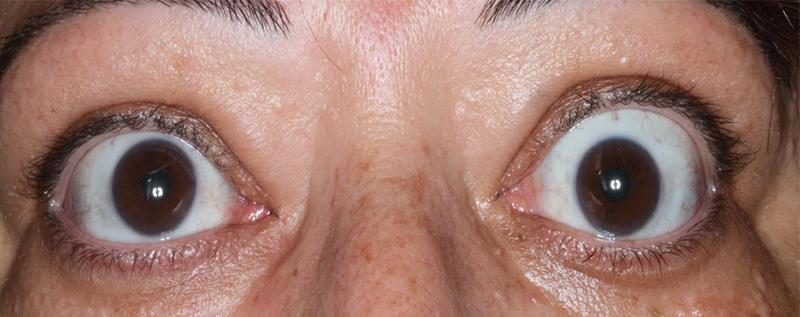 Δυσθυρεοειδική οφθαλμοπάθεια (νόσος Graves') 2