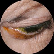 Δυσθυρεοειδική οφθαλμοπάθεια (νόσος Graves')