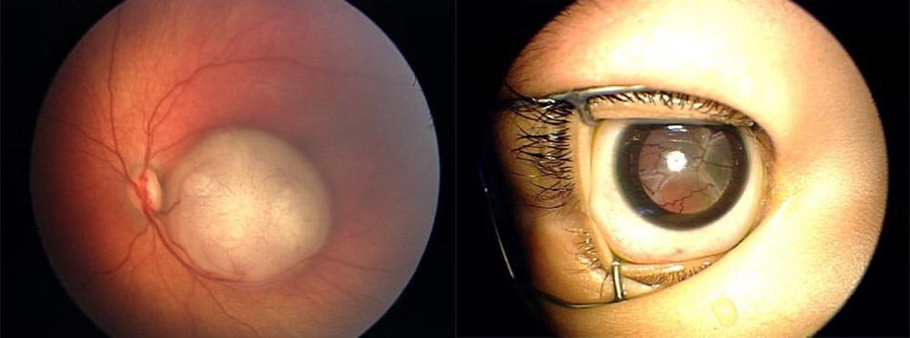 Όγκοι οφθαλμού 2