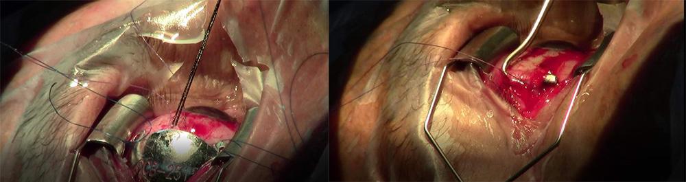 Όγκοι οφθαλμού 4