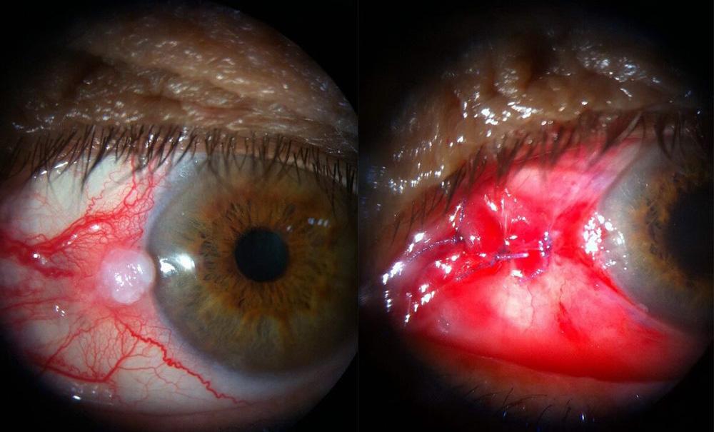 Όγκοι βλεφάρων, οφθαλμικής επιφάνειας και οφθαλμικού κόγχου 1
