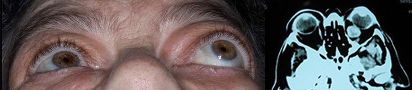 Όγκοι βλεφάρων, οφθαλμικής επιφάνειας και οφθαλμικού κόγχου 3