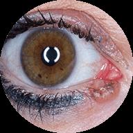 Όγκοι βλεφάρων, οφθαλμικής επιφάνειας και οφθαλμικού κόγχου