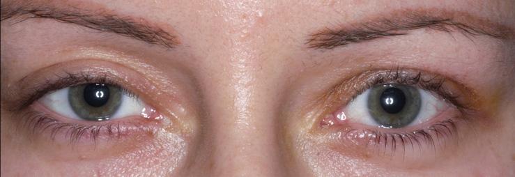 Αισθητική οφθαλμοπλαστική χειρουργική 1