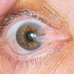 Πτερύγιο & παθήσεις Οφθαλμικής Επιφάνειας