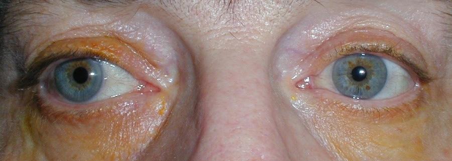 Στραβισμοί και Οφθαλμοκινητικές Διαταραχές 1