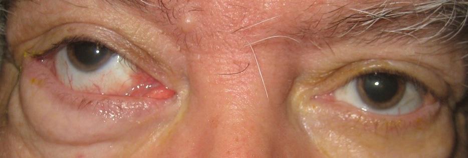 Στραβισμοί και Οφθαλμοκινητικές Διαταραχές 3