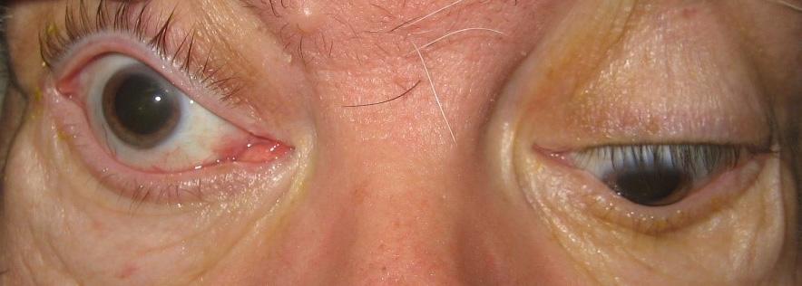 Στραβισμοί και Οφθαλμοκινητικές Διαταραχές 4