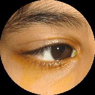 Στραβισμοί και Οφθαλμοκινητικές Διαταραχές