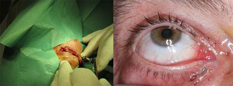 Τραύματα οφθαλμού και περιοφθαλμικής περιοχής 2