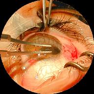 Τραύματα οφθαλμού και περιοφθαλμικής περιοχής
